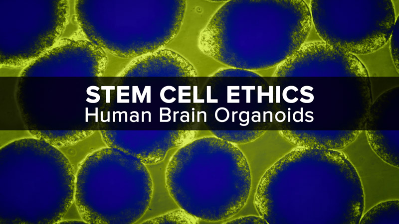 Stem Cell Ethics: Human Brain Organoids