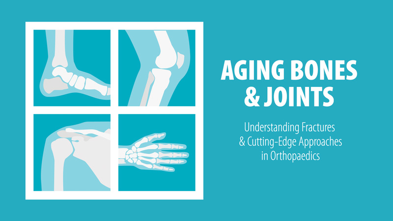 Aging Bones and Joints: Understanding Fractures and Cutting-Edge Approaches in Orthopaedics