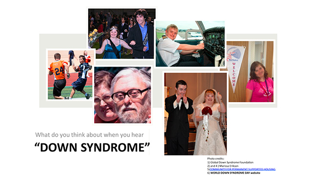 living with down syndrome essay Why do some see my daughter's life as wrongful down syndrome, i could write an essay in like down syndrome is a life not worth living.
