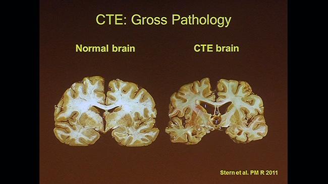 video  chronic traumatic encephalopathy